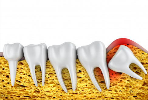 What Are Impacted Teeth Treatments