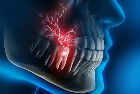 What Types Of Dental Emergencies Are Most Common