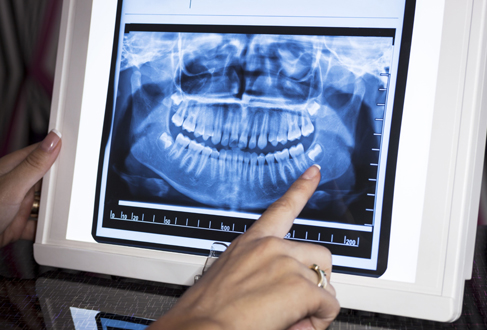 Who Is A Candidate For Impacted Teeth Treatments